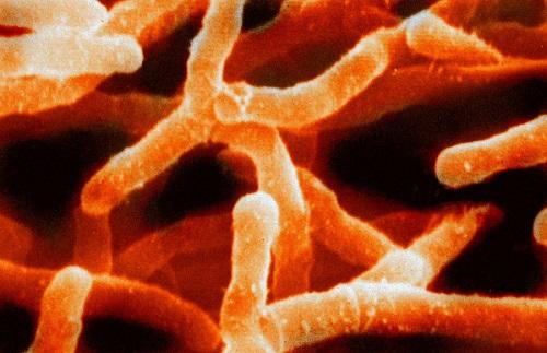 """""""Actinomyces israelii"""" CC-BY-3.0 (Magnus Manske) https://en.wikipedia.org/wiki/Actinobacteria#/media/File:Actinomyces_israelii.jpg"""